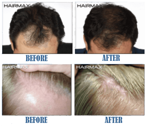 hairmax lasercomb before and after result